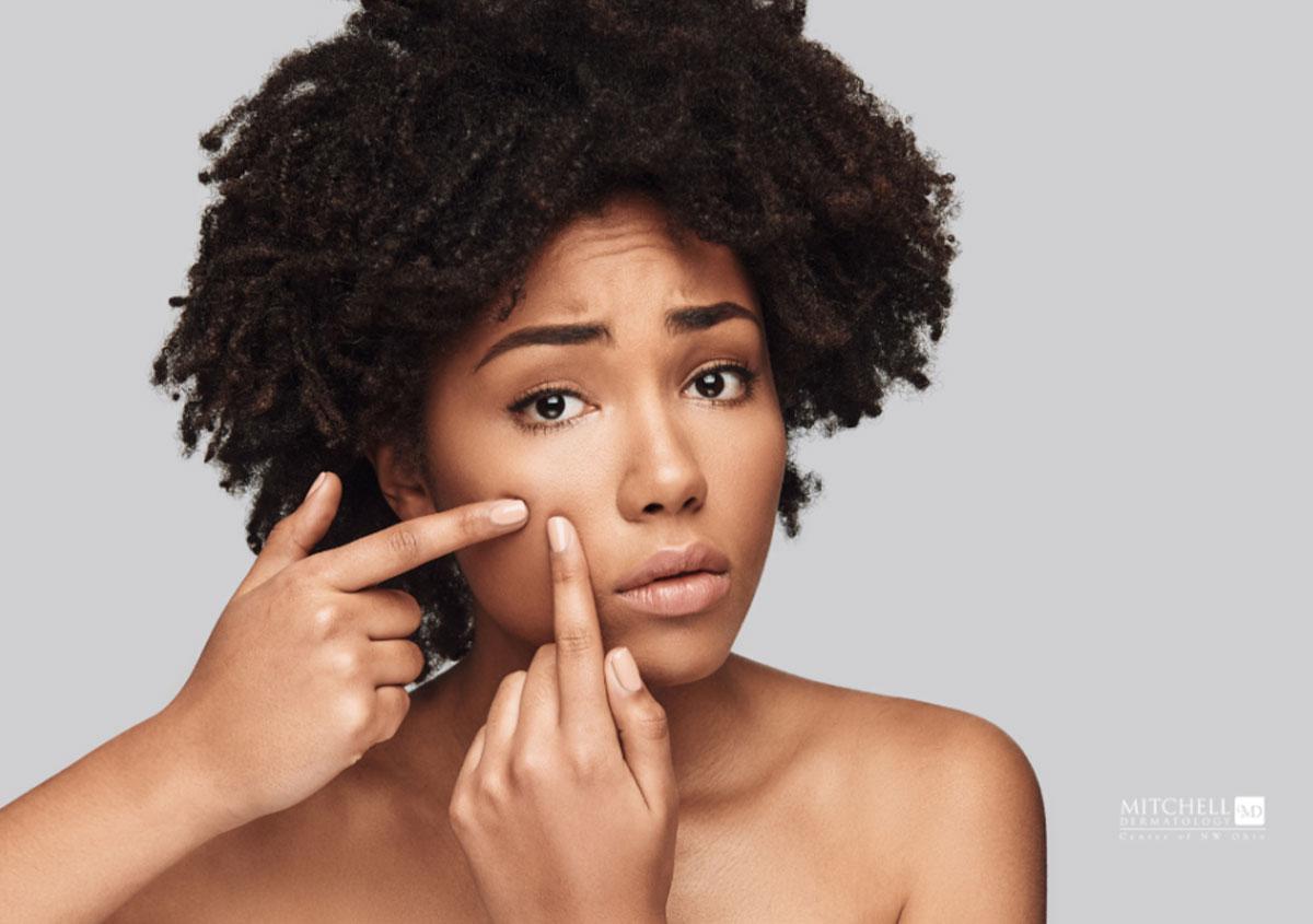Woman is having acne