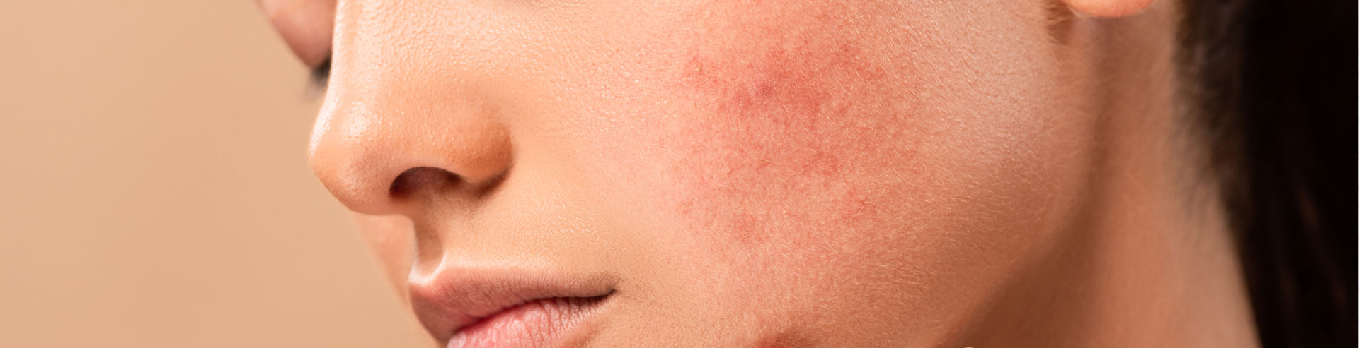 Young woman with acne on face